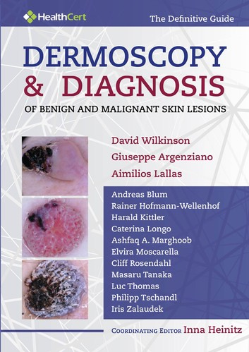 Dermoscopy and Diagnosis of Benign and Malignant Skin Lesions